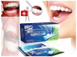 Избелващи ленти за зъби