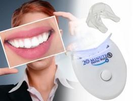 Система за избелване на зъби за 20 минути