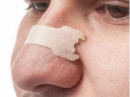 Пластири за отпушване на нос